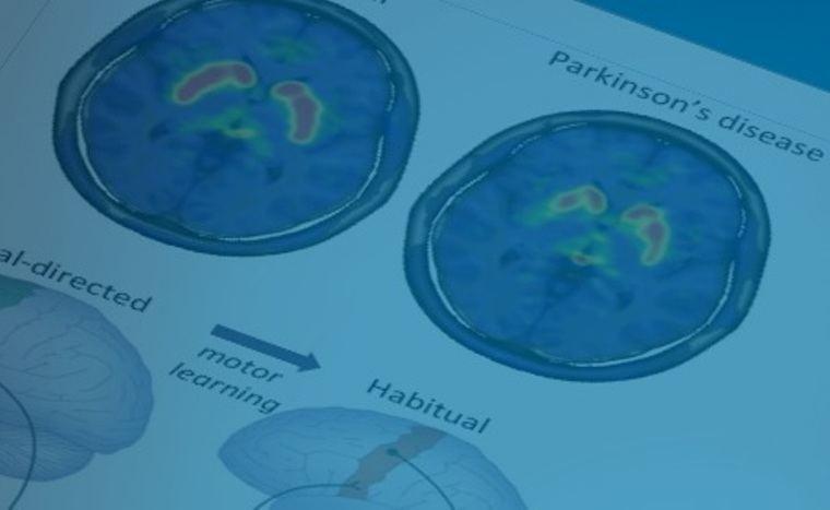 Investigadores del HM CINAC publican una teoría que cuestiona el origen periférico del Parkinson